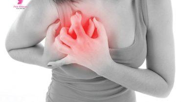 Giãn tuyến sữa : Nguyên nhân dấu hiệu và cách khắc phục